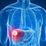 Studio: Azione anti-tumorale dei cannabinoidi sul carcinoma epatocellulare