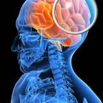 Il Thc può proteggere in caso di lesioni cerebrali traumatiche