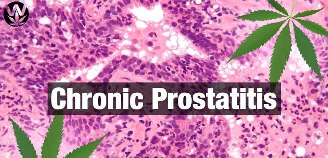 Studio: Uso della Cannabis utile nel dolore della Prostatite cronica