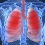 Nuovo Studio sulla Cannabis e Salute Polmonare