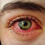 Perchè fumare Cannabis rende gli occhi rossi?