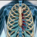 CBD utile contro il dolore cronico della costocondrite