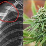 Studio: CBD utile nella cura delle fratture ossee