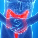 Studio: Cannabinoidi utili per combattere l'infiammazione dell'intestino